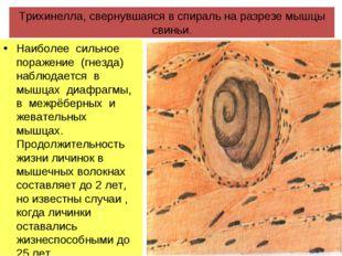 Трихинелла, свернувшаяся в спираль на разрезе мышцы свиньи. Наиболее сильное