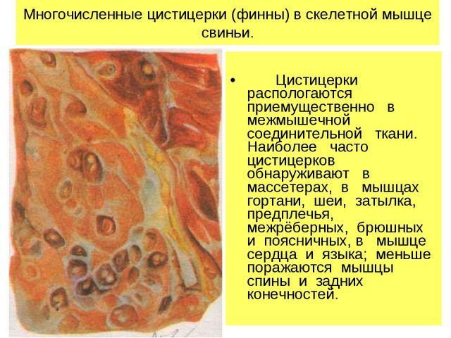 Многочисленные цистицерки (финны) в скелетной мышце свиньи. Цистицерки распо...