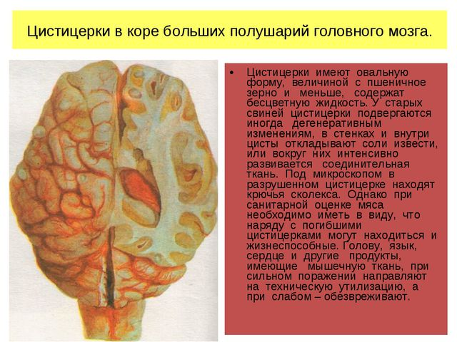 Цистицерки в коре больших полушарий головного мозга. Цистицерки имеют овальну...
