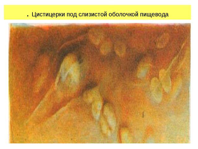 . Цистицерки под слизистой оболочкой пищевода