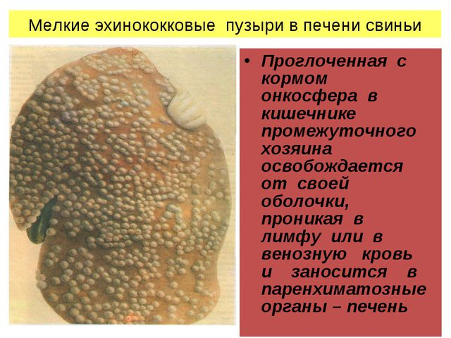 Мелкие эхинококковые пузыри в печени свиньи Проглоченная с кормом онкосфера в...