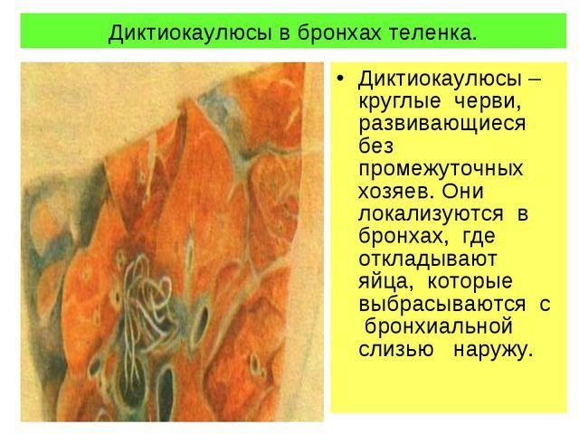 Диктиокаулюсы в бронхах теленка. Диктиокаулюсы – круглые черви, развивающиеся...