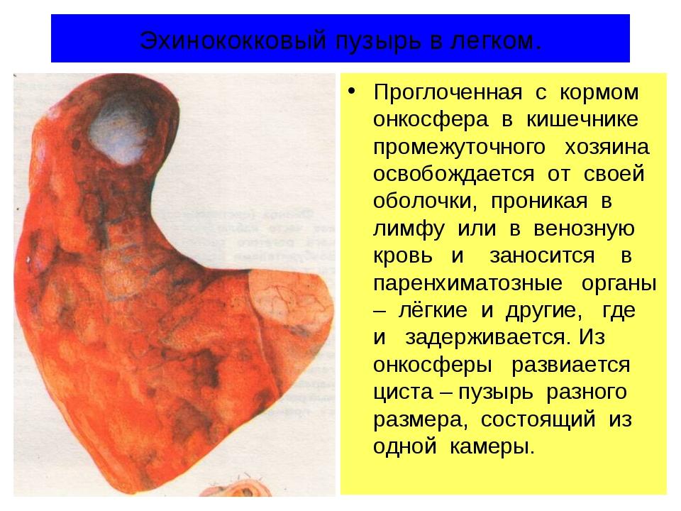 Эхинококковый пузырь в легком. Проглоченная с кормом онкосфера в кишечнике пр...