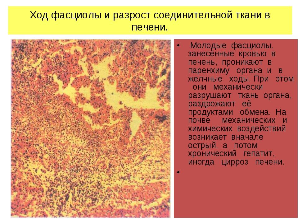 Ход фасциолы и разрост соединительной ткани в печени. Молодые фасциолы, занес...