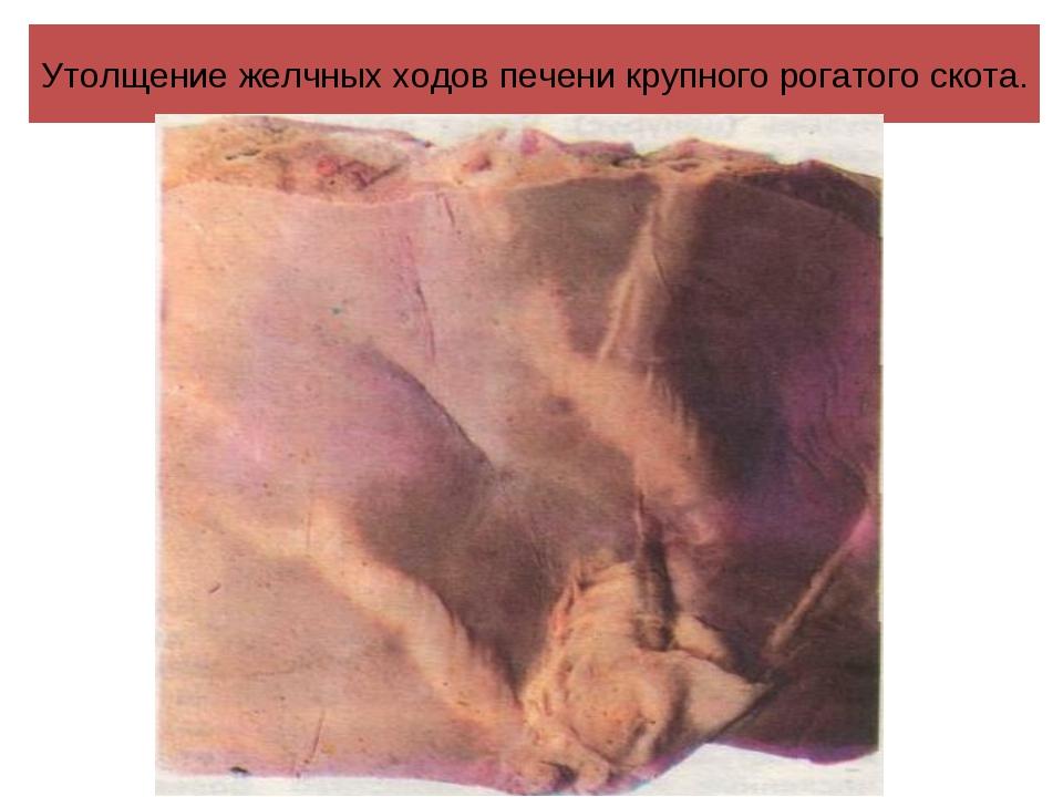 Утолщение желчных ходов печени крупного рогатого скота.
