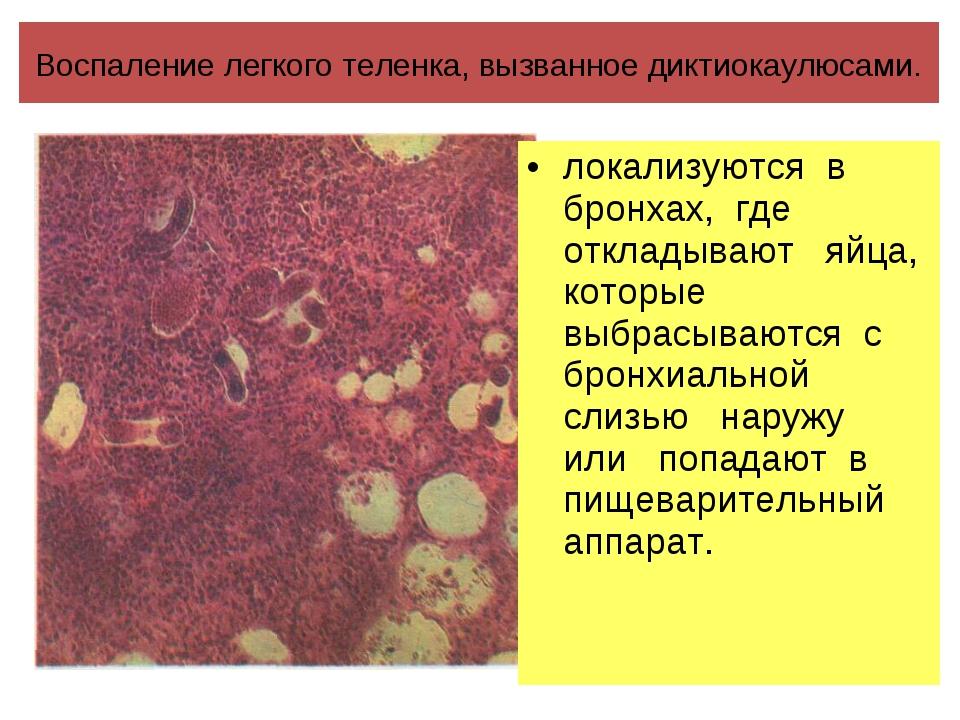 Воспаление легкого теленка, вызванное диктиокаулюсами. локализуются в бронхах...