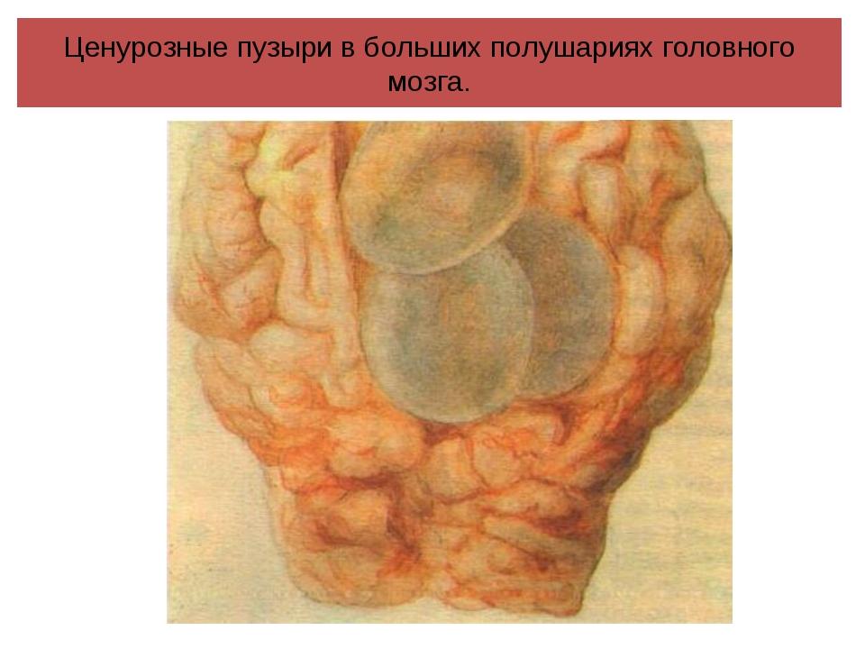 Ценурозные пузыри в больших полушариях головного мозга.