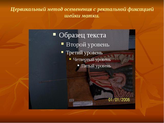 Цервикальный метод осеменения с ректальной фиксацией шейки матки.