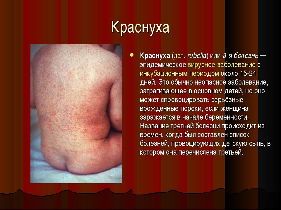 Краснуха Краснуха (лат.rubella) или 3-я болезнь— эпидемическое вирусное заб...