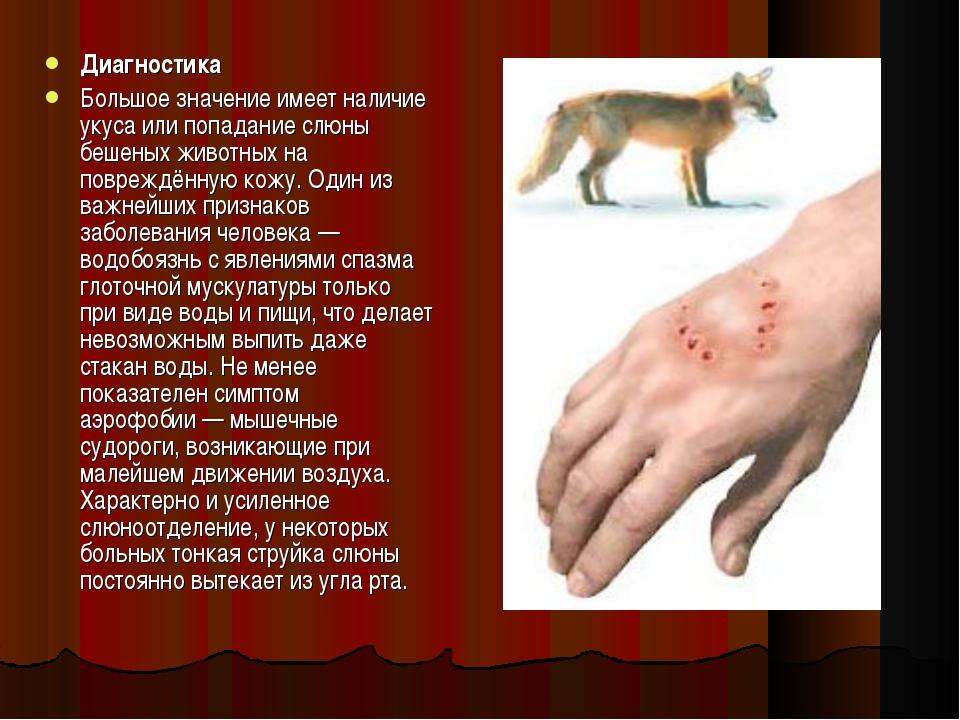 Диагностика Большое значение имеет наличие укуса или попадание слюны бешеных...
