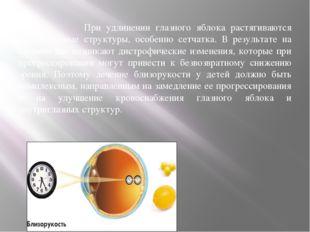 При удлинении глазного яблока растягиваются внутриглазные структуры, особенн