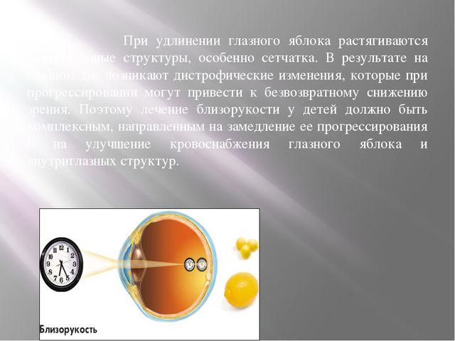 При удлинении глазного яблока растягиваются внутриглазные структуры, особенн...