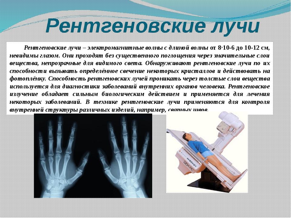 Рентгеновские лучи Рентгеновские лучи– электромагнитные волны с длиной волны...