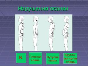 Нарушения осанки N Плоская спина Сутулая спина Кругло- вогнутая спина