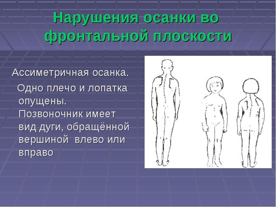 Нарушения осанки во фронтальной плоскости Ассиметричная осанка. Одно плечо и...