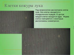 Клетки кожуры лука Под микроскопом рассмотрела клетки лука. Все клетки находя