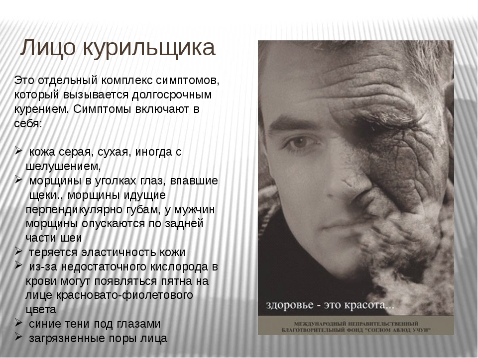 Лицо курильщика Это отдельный комплекс симптомов, который вызывается долгосро...