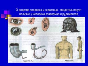 О родстве человека и животных свидетельствует наличие у человека атавизмов и