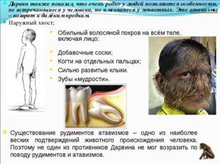 Дарвин также показал, что очень редко у людей появляются особенности, не встр