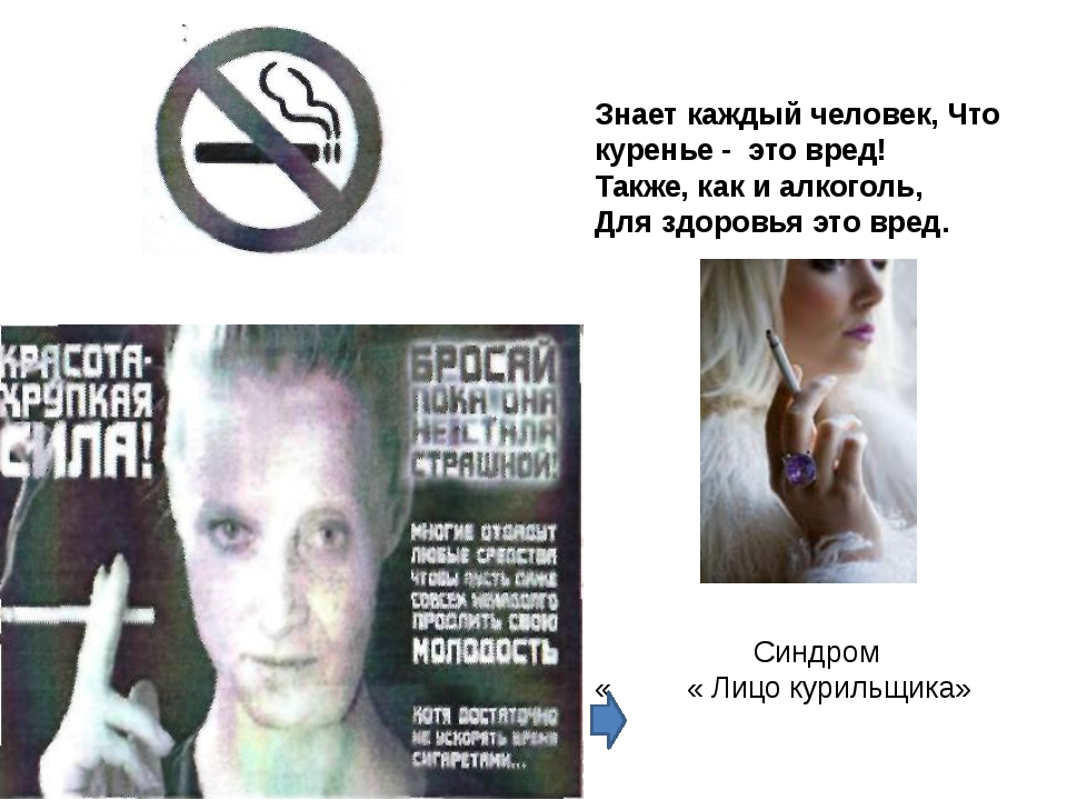 Знает каждый человек, Что куренье - это вред! Также, как и алкоголь, Для здор...