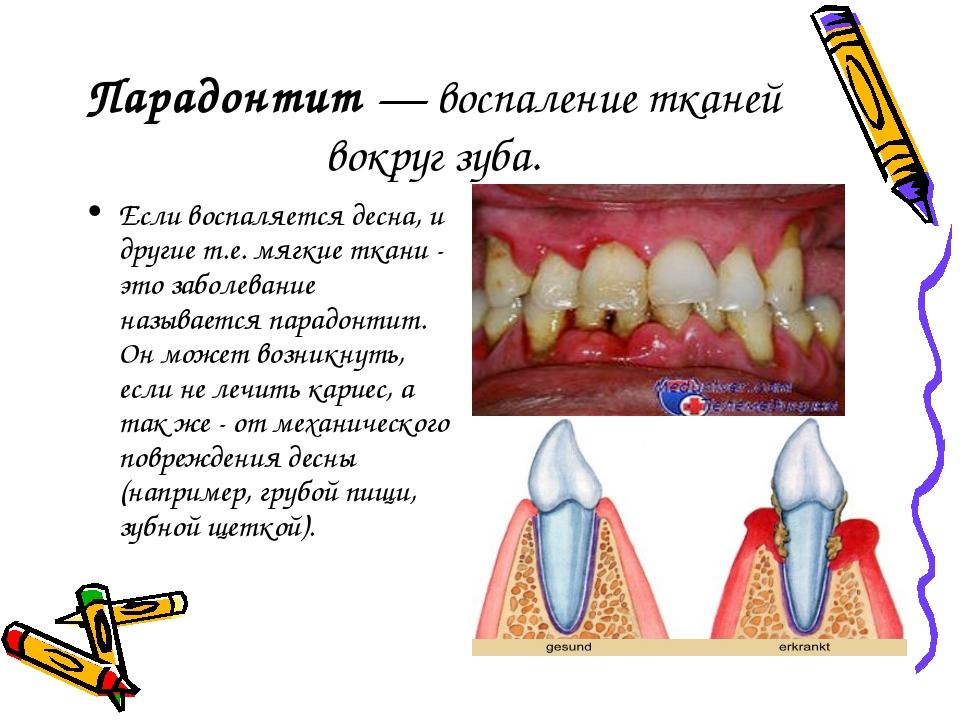 Воспалилась десна у зуба чем лечить