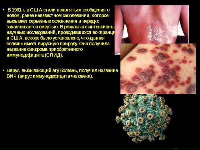В 1981 г. в США стали появляться сообщения о новом, ранее неизвестном заболе...