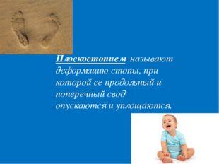 Плоскостопием называют деформацию стопы, при которой ее продольный и поперечн