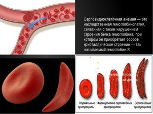 Серповидноклеточная анемия — это наследственная гемоглобинопатия, связанная с