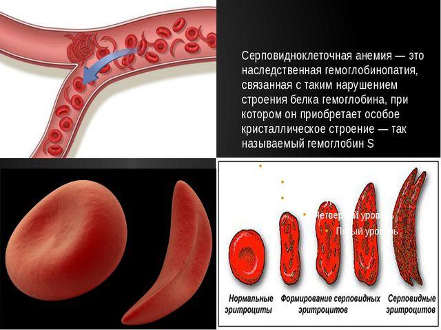 Серповидноклеточная анемия — это наследственная гемоглобинопатия, связанная с...