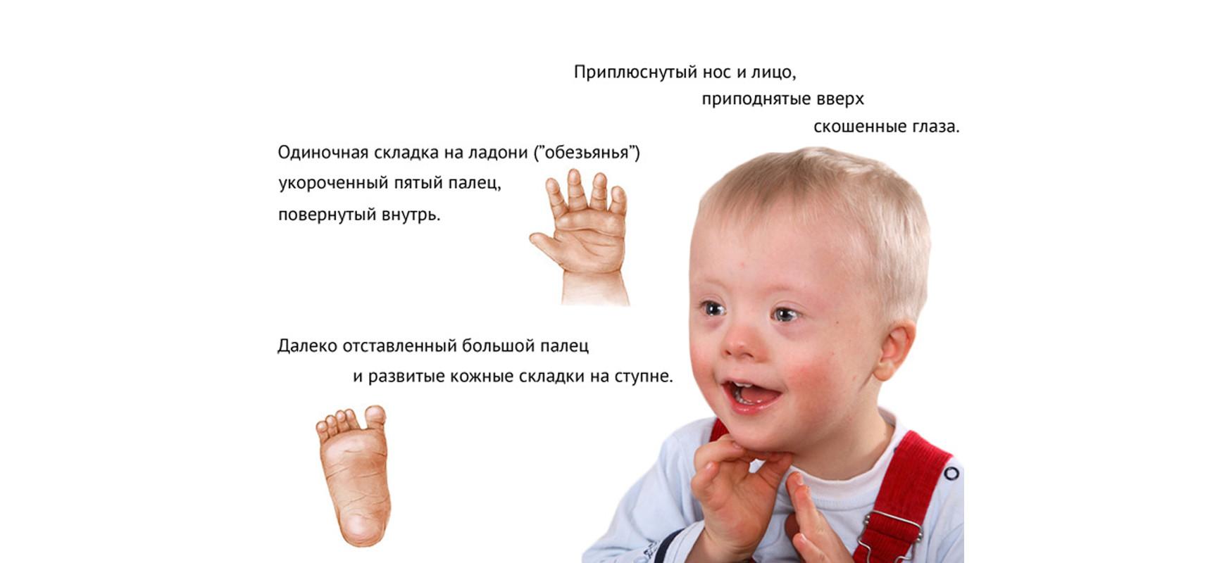 http://meddoc.com.ua/wp-content/uploads/2014/06/sindrom-dauna1-1728x800_c.jpg