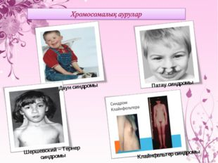 Даун синдромы Патау синдромы Шершевский – Тернер синдромы Клайнфельтер синдромы