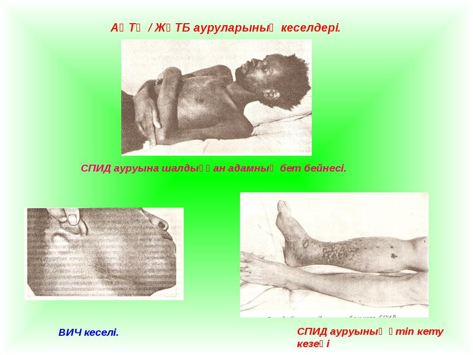АҚТҚ / ЖҚТБ ауруларының кеселдері. СПИД ауруына шалдыққан адамның бет бейнесі...