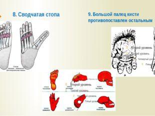 8. Сводчатая стопа 9. Большой палец кисти противопоставлен остальным