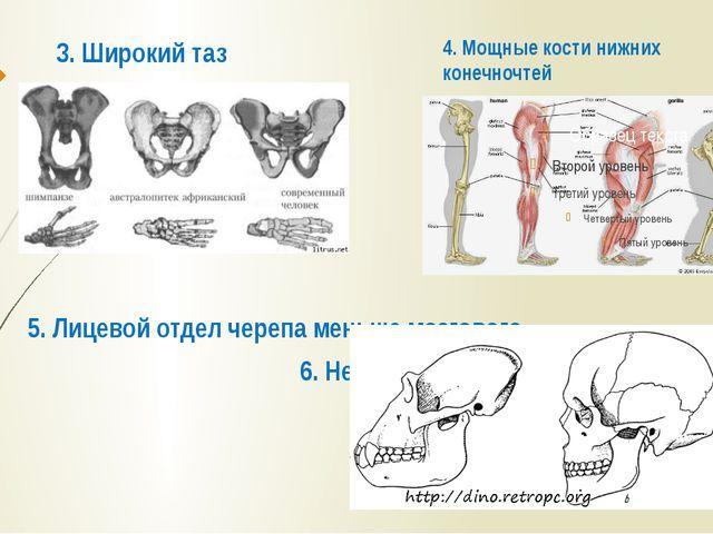 3. Широкий таз 5. Лицевой отдел черепа меньше мозгового. 6. Нет надбровных ду...