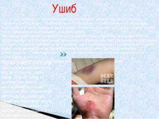 Ушиб Уши́б(лат.contusio)— закрытое повреждение тканей и органов без сущест
