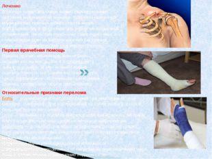 Лечение В случае перелома очень важно своевременное оказание медицинской помо