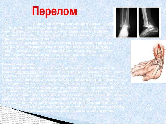 Перелом Перело́м ко́сти— полное или частичное нарушение целостностикостипр...