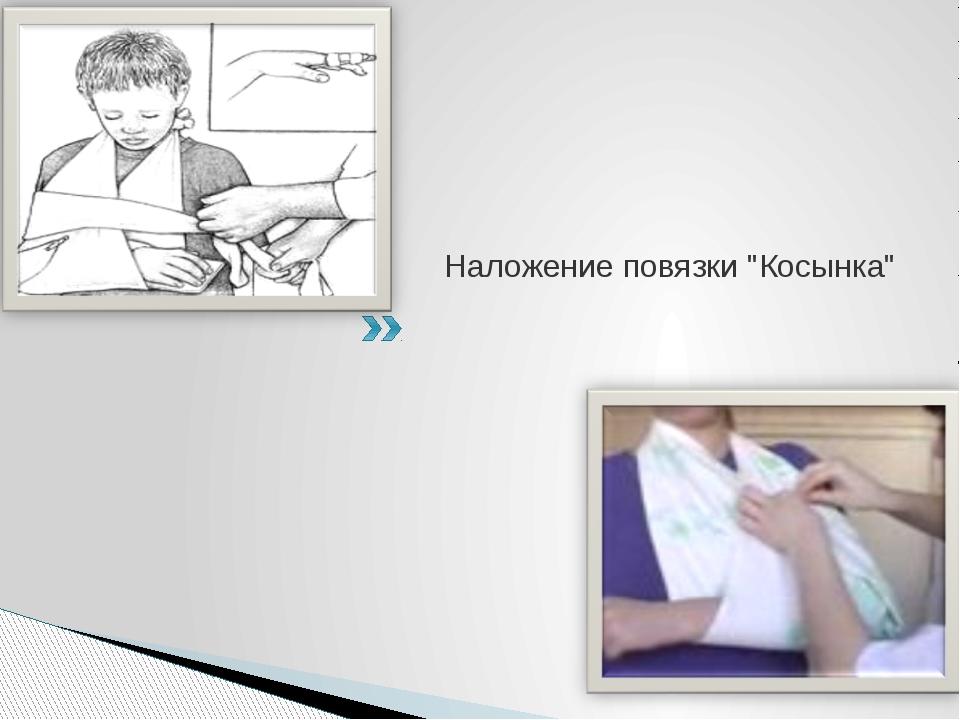 """Наложение повязки """"Косынка"""""""