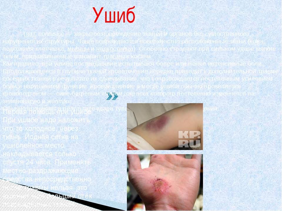 Ушиб Уши́б(лат.contusio)— закрытое повреждение тканей и органов без сущест...