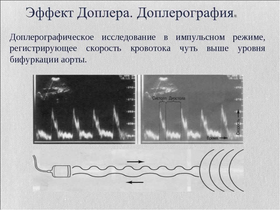 Доплерографическое исследование в импульсном режиме, регистрирующее скорость...