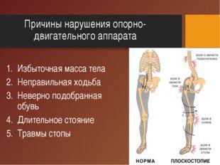 Причины нарушения опорно-двигательного аппарата Избыточная масса тела Неправи