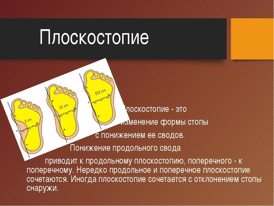 Плоскостопие Плоскостопие - это изменение формы стопы с понижением ее сводов...