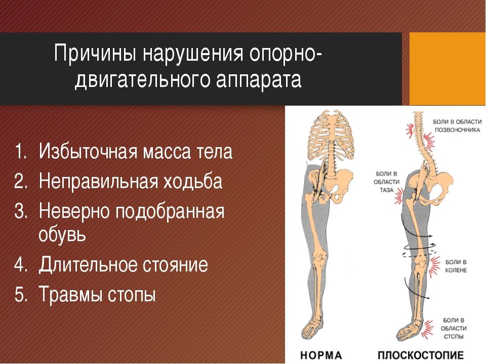 Причины нарушения опорно-двигательного аппарата Избыточная масса тела Неправи...