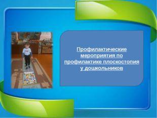 Профилактические мероприятия по профилактике плоскостопия у дошкольников