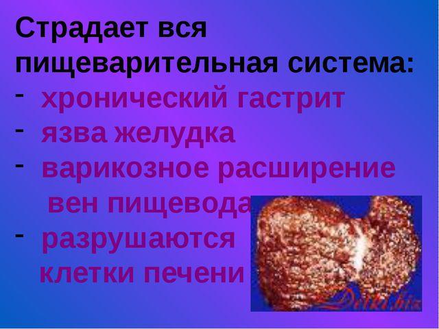 Страдает вся пищеварительная система: хронический гастрит язва желудка варико...