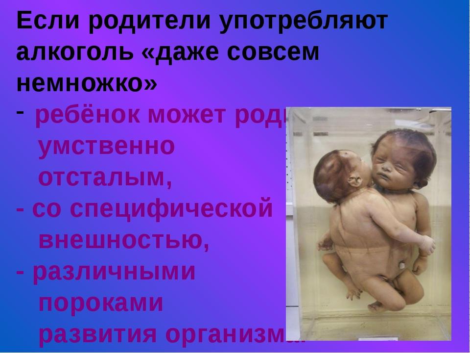 Если родители употребляют алкоголь «даже совсем немножко» ребёнок может родит...