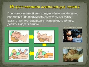При искусственной вентиляции лёгких необходимо обеспечить проходимость дыхате