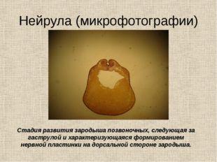 Нейрула (микрофотографии) Стадия развития зародыша позвоночных, следующая за