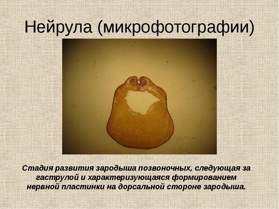 Нейрула (микрофотографии) Стадия развития зародыша позвоночных, следующая за...
