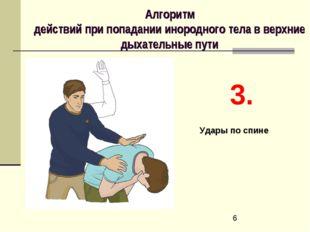 Алгоритм действий при попадании инородного тела в верхние дыхательные пути 3.